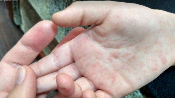 В Гродно и Лиде выявлены случаи кори